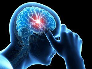 dt_141229_migraine_headache_brain_800x600